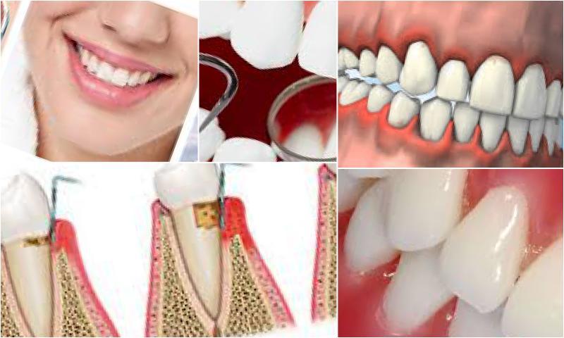 Periodontoloji İle Diş Eti Sorunlarından Kurtulun